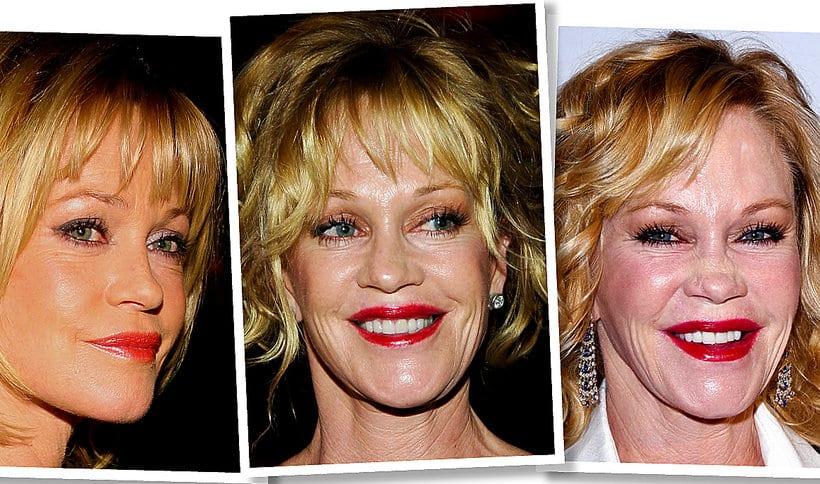 Melanie Griffith przed i po operacjach plastycznych.